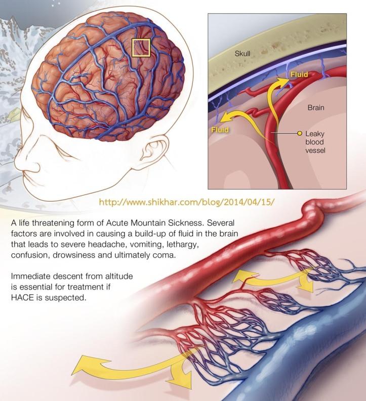High altitude brain